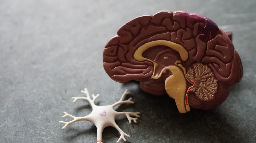 dementia and brain changes