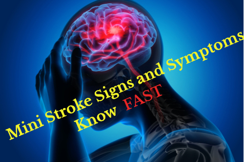 Mini Stroke Signs and Symptoms – Know FAST